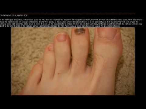 Runner's Toe