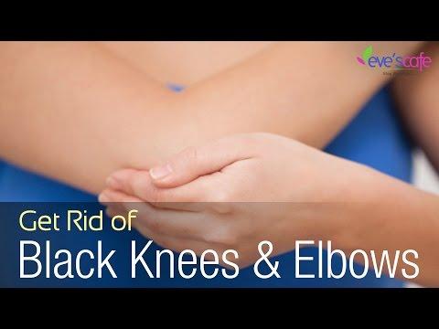 Lighten Dark Knees & Elbows using Baking soda