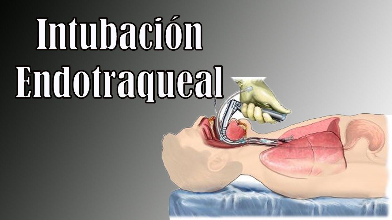 Intubación Endotraqueal - YouTube
