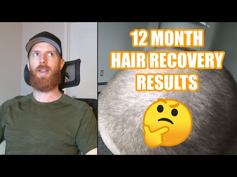 12 MONTHS HAIR RECOVERY // Did I Regrow Any Hair?