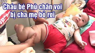 Cậu bé 4 tháng tuổi bệnh Phù Chân Voi bị bố mẹ bỏ rơi. Khoa nhi bệnh viện TW Huế
