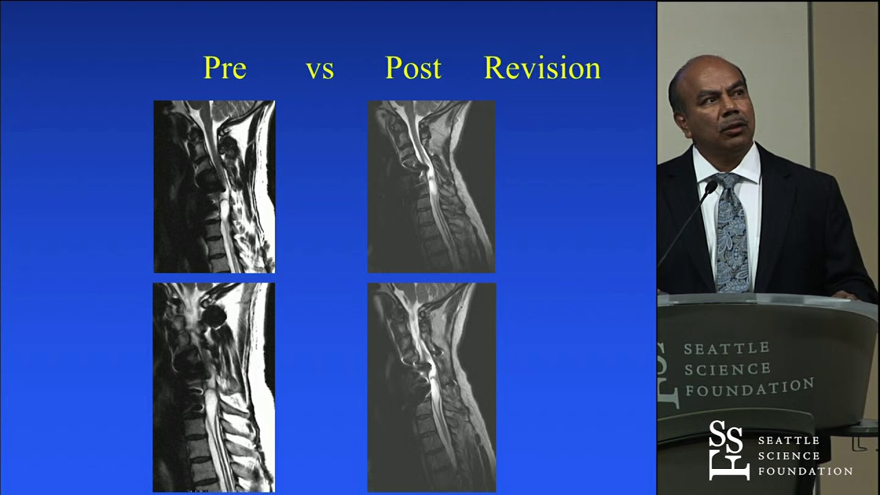 Neurologic Improvement Decades after SCI following Revision Spine Surgery -  Hector O  Pacheco, MD