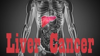 How Liver Cancer Affects the Body