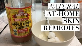 Natural, At-Home Skincare Remedies from Your Dermatologist