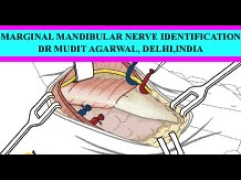 MARGINAL MANDIBULAR NERVE PRESERVATION DURING RIGHT NECK DISSECTION