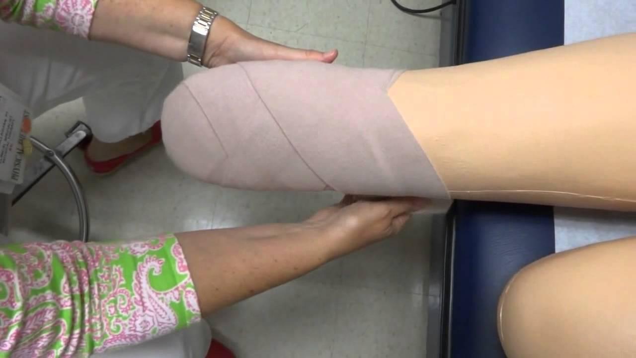 below knee amputation technique pdf