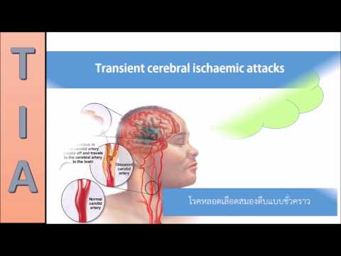 Transient cerebral Ischaemic Attacks symptoms