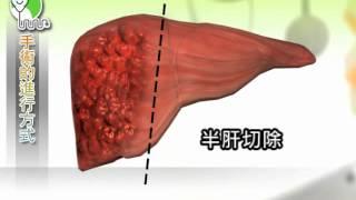 【知情同意】認識肝癌切除手術(國語)