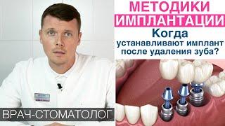 Методики имплантации зубов - немедленная, одномоментная, двухэтапная. Преимущества, противопоказания