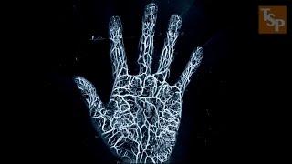 [과학 기술] 레이저와 음파로 신체 내부를 3D로 찍는 신기술, 광음향 영상 (Photoacoustic Imaging)