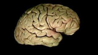 Скачать Мозг ствол и желудочки Акланд 5 том 2 часть Перевод