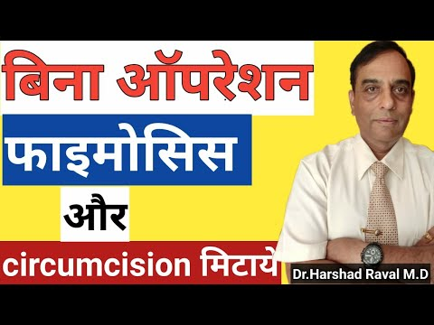 Phimosis का बिना ऑपरेशन के इलाज |  Best Treatment For Phomosis L Homeopathic Medicine For Phimosis
