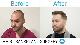 Hair Transplant - 1 YEAR POST-OP - BEFORE & AFTER Results - FU…