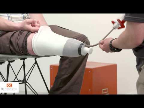 OK Prosthetics - Amputee Assistance
