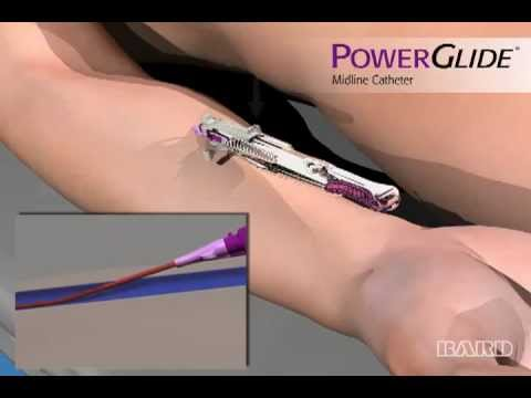 Powerglide Midline Catheter Mdea 2013 Bronze Winner