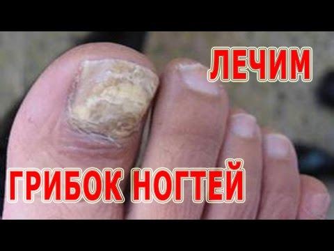 ★Как лечить ГРИБОК НОГТЕЙ на руках и ногах. Профилактика микоза. Противогрибковые препараты.