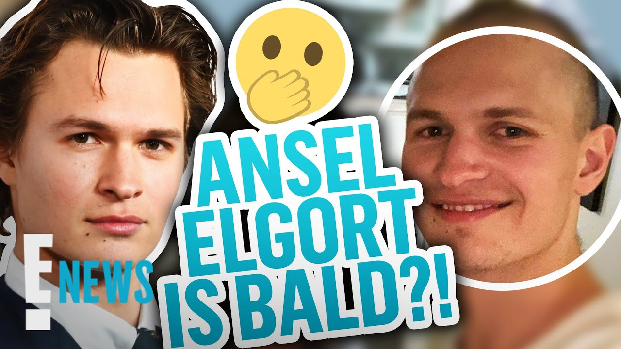 Ansel Elgort Resurfaces on Social Media With a Bald Head News
