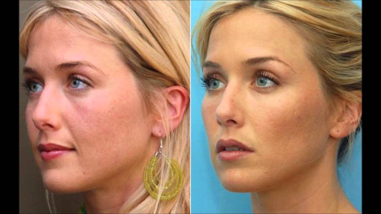 The difference between Botox or Dermal Fillers & how they work? The Medical  Skin Clinic