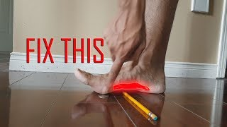 ARE ORTHOTICS WORTH IT? HOW TO FIX FLAT FEET