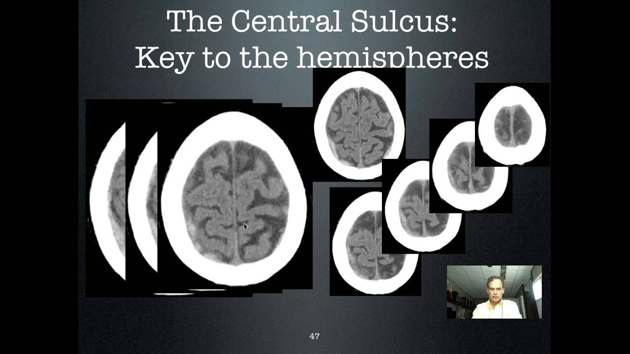 Central Sulcus: Key to the hemispheres - YouTube