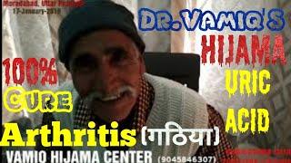 Hijama for Uric Acid, Joint Pain, Arthritis (Dr.Vamiq Hijama Center) || Moradabad,UP || (India)