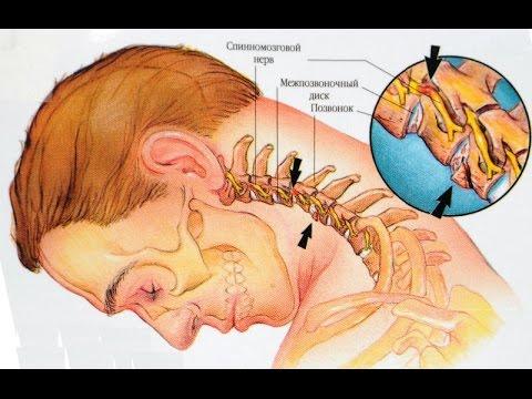 Остеохондроз спондилоартроз шейного отдела позвоночника - YouTube