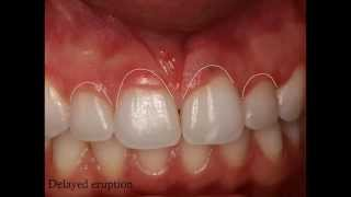 How to improve the smile with esthetic crown lengthening? (PART 1 of 3, SurgicalMaster QuickLecture)