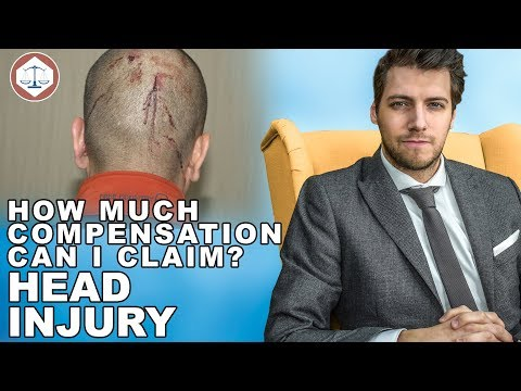 Head Injury Compensation Claims Amounts? ( 2019 ) UK