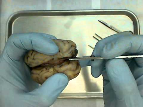 Sheep Brain Diagram Biology Corner Hayward De Filter Parts Dissection Youtube