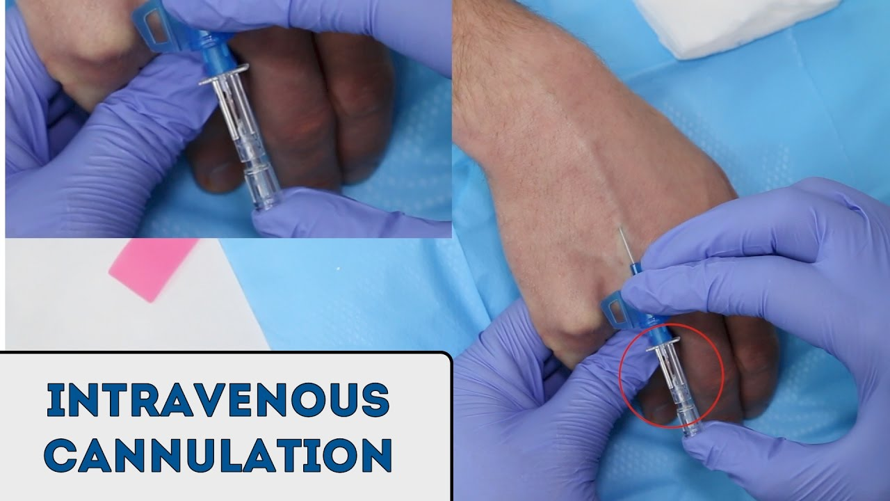 Intravenous (IV) cannulation - OSCE Guide