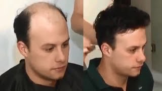 Hair Toupee - Hair Replacement - Hair System - Men's Wigs