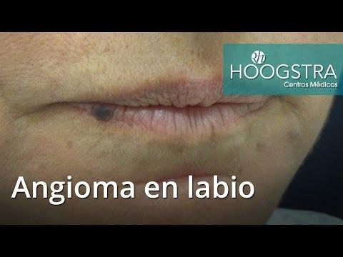 Angioma en labio (16135)