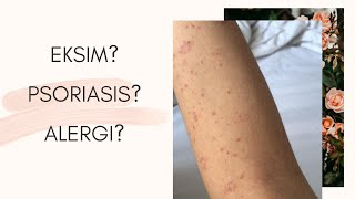 Dr. Sarah Barba-Cabodil tackles Keratosis Pilaris or Chicken Skin and clears out questions about it..