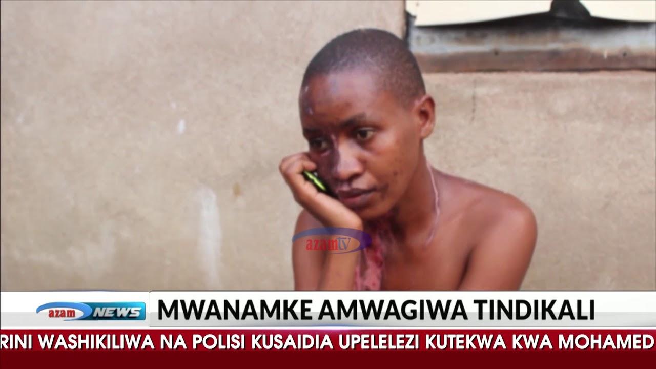 Download Mwanamke amwagiwa tindikali na mumewe