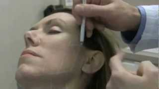 Ultherapy NYC Dr Ron Shelton - Cosmetic Dermatologist New York City
