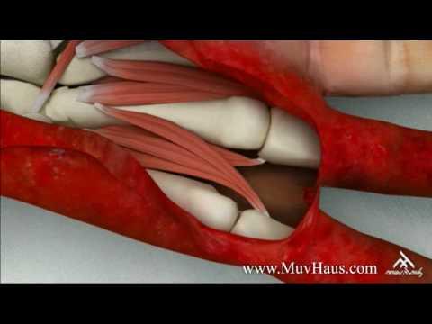 3d Medical Visualization - Fingers Amputation (Part II)