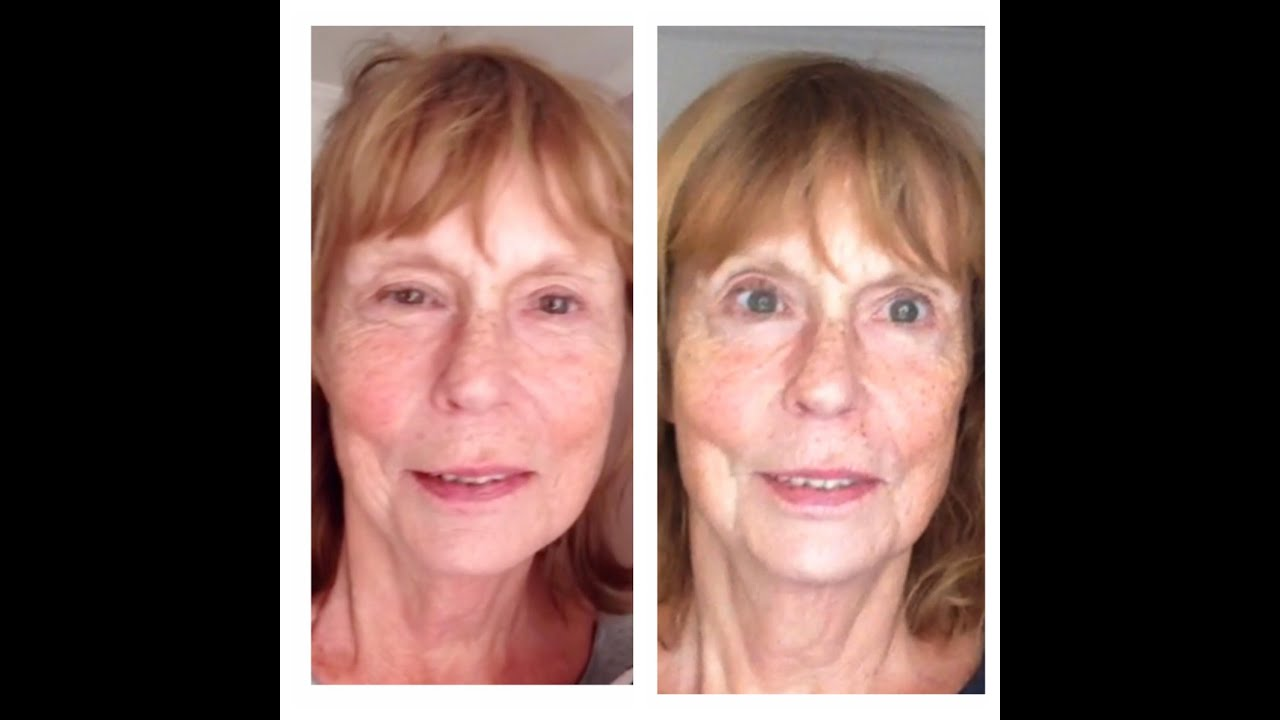 The purpose Microcurrent facial before and after