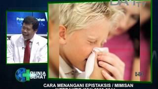 Sehat di Tengah Pandemi: Walaupun Rajin Minum Air, Kenapa Sering Mimisan?.