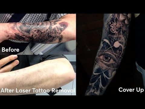 Tattoo Removal Cover Ups London Pulse Light Clinic London