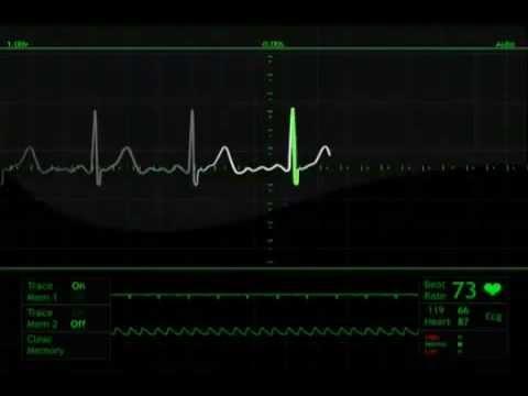 heart beat monitor animation free stock footage