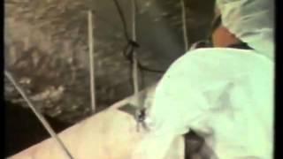 Asbestos Control Encapsulation 1978 NYC Public Schools