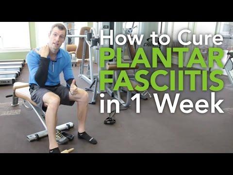 How to Cure Plantar Fasciitis in 1 week
