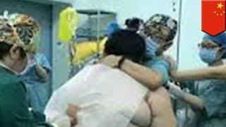Wanita hamil di Cina kejutkan dokter dengan lemak tubuh setebal 2 inci - TomoNews