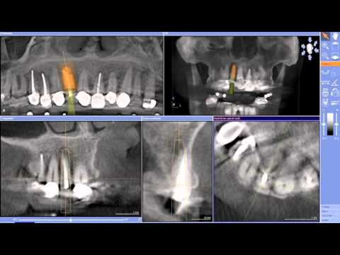 Implant Case #7 - Dr. Tarun Agarwal, Part 3: GALILEOS implant planning