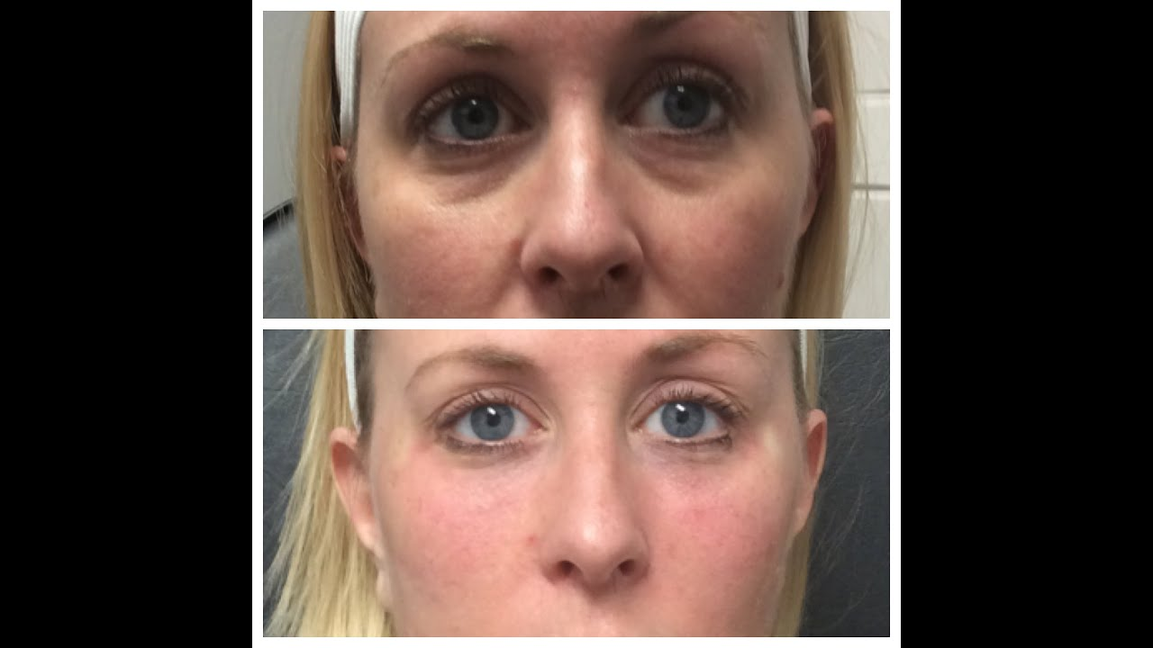 Permanent Filler - Bellafill will last up to 10 YEARS !!! - Scottsdale, AZ