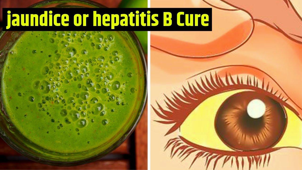 7 home remedies to relieve the symptoms of jaundice or hepatitis B