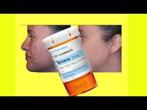 HOW TO GET RID OF ACNE - The Pill that Kills Acne