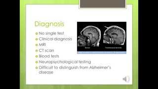 Frontal Lobe Dementia webinar