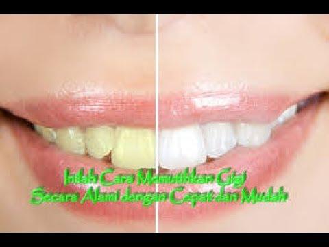 Bagaimanakah Cara Memutihkan Gigi Paling Cepat Secara Alami Youtube