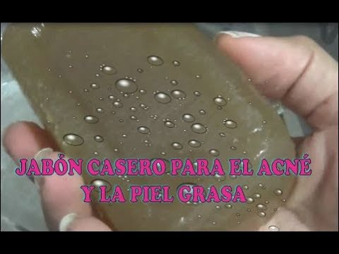 Jabón casero para controlar el  acné y la piel grasa